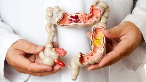 Причини виникнення раку кишечника