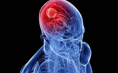 Рак мозку