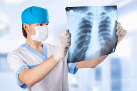 Рак легенів - поширена онкологія