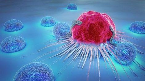 Небезпечні симптоми раку, які не можна ігнорувати