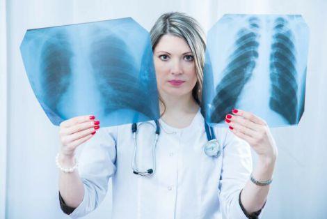 Рак легенів у некурців