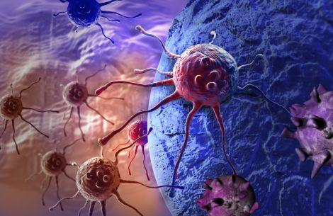 Причини раку сечового міхура