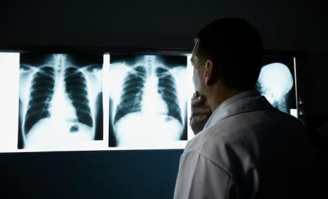 Рак легенів: симптоми, які ми ігноруємо