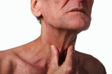 Ознака раку гортані