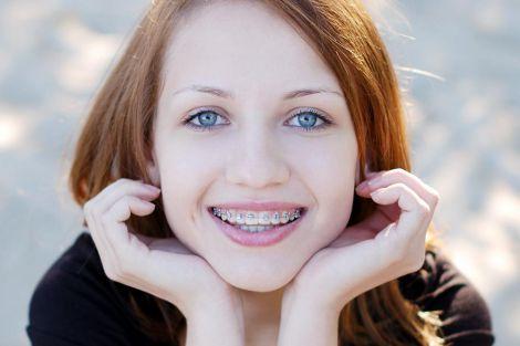 Посмішка з брекетами