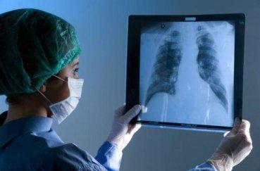 Симптоми раку легень на ранній стадії, які не можна пропустити