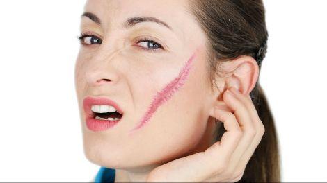 Шрами на обличчі можуть викликати багато комплексів