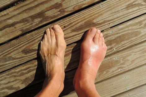 Як позбутися від набряків ніг за допомогою народних засобів