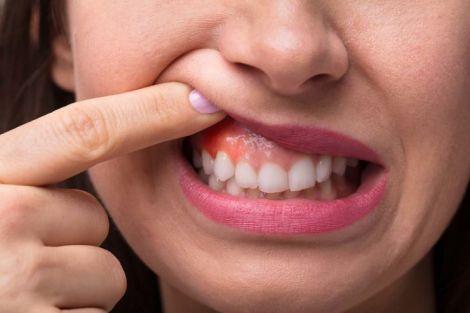 Стан зубів та деменція