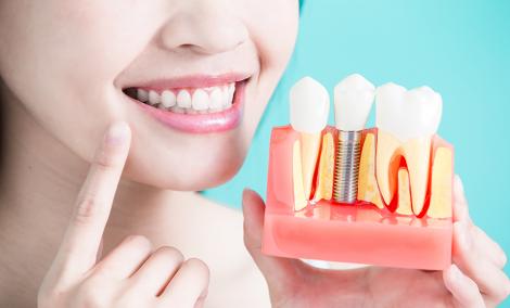 Альтернатива зубним імплантам