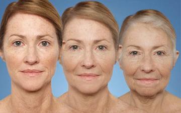 передчасне старіння може бути наслідком ваших звичок