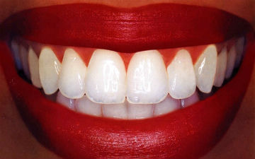 Активоване вугілля відбілює зуби