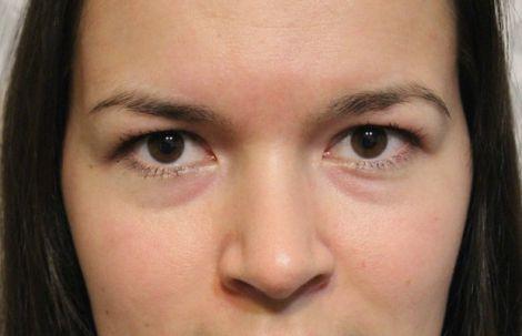 Як позбутись мішків під очима?