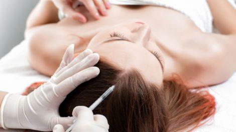 Мезотерапія волосся та її користь