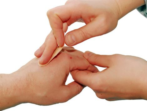 Правильна обробка рани
