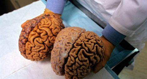 Розмір мозку
