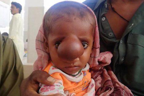 В Пакистані народився хлопчик з мозком на обличчі