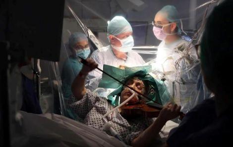 Жінка грала на скрипці під час операції на мозку