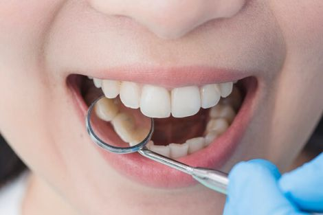 Небезпека зубного каменю