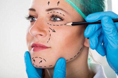Підтяжка обличчя