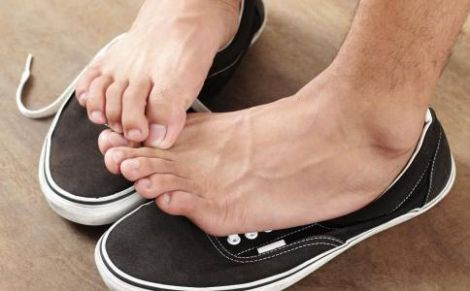 Пітніють ноги
