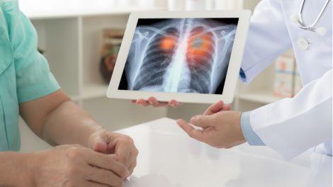 Лікування легень