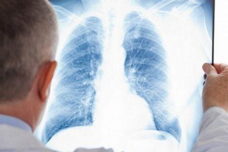 Поради, які допоможуть покращити роботу легень