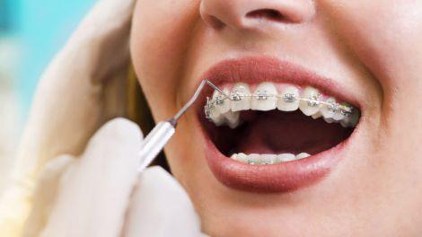 Поради для вибору ортодонта