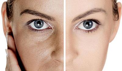 Як назавжди забути про розширені пори на обличчі?