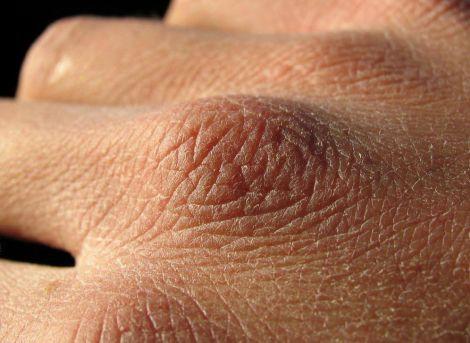Хвороби, які може викликати сухість шкіри