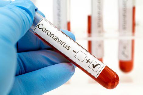 Турецькі вчені навчились вбивати коронавірус за хвилину