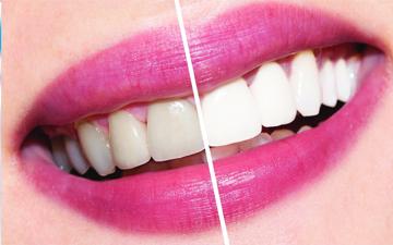 відбілювання зубів в домашніх умовах можливе
