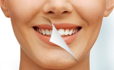 Як відбілити зуби в домашніх умовах?