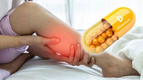 Дефіцит вітаміну D: незвичайний симптом вкаже на небезпечний стан