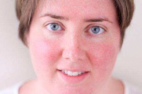 Почервоніння обличчя може свідчити про гіпертонію?
