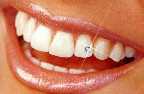ТОП 3 найкращі вітаміни для ваших зубів