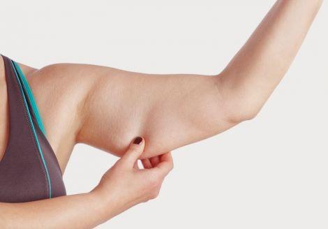 Як уникнути обвисання шкіри під час схуднення?