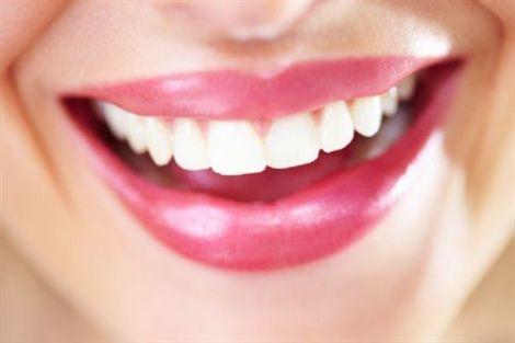 Люминиры - белоснежная улыбка
