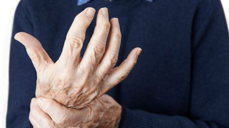 Рецепти для лікування артриту