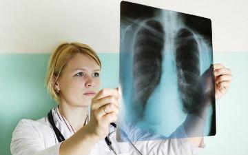 Симптоми та лікування туберкульозу
