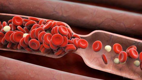 Що їсти і пити для розрідження крові?