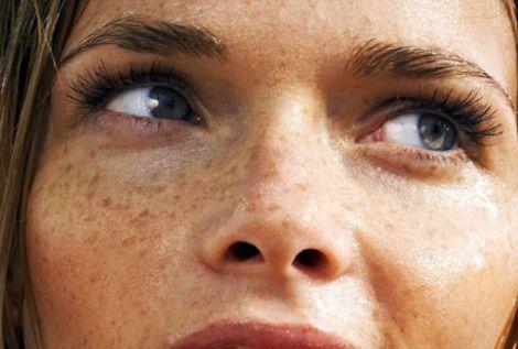 Косметолог розповіла, як боротись з пігментними плямами (ВІДЕО)
