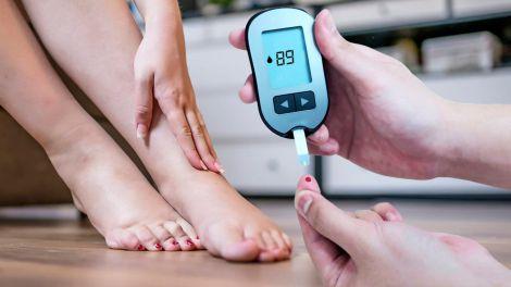 Симптоми діабету: чотири ознаки на ногах вкажуть на високий цукор