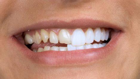 Вініри - найбільш прогресивний метод відновлення зубів