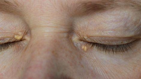 Симптоми високого рівня холестерину: як вони проявляються на обличчі