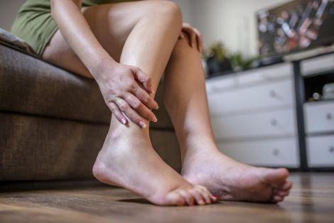 Як попередити появу варикозу вагітним?