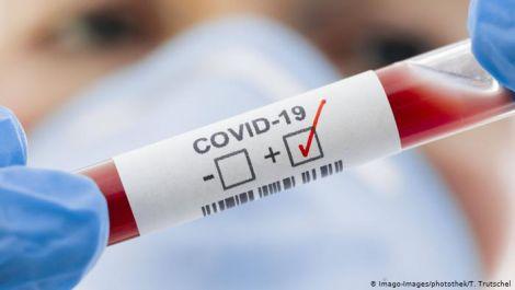 Лікар: на жаль, COVID-19 має три довічних наслідки