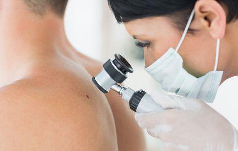 Диагностика рака кожа
