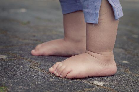 Вправи для профілактики дитячої плоскостопості