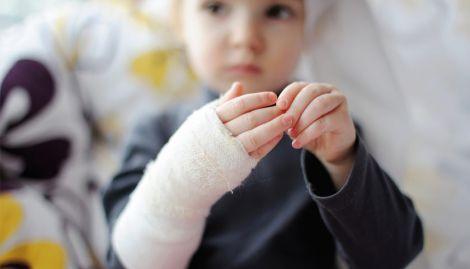 Лікування опіків у дітей